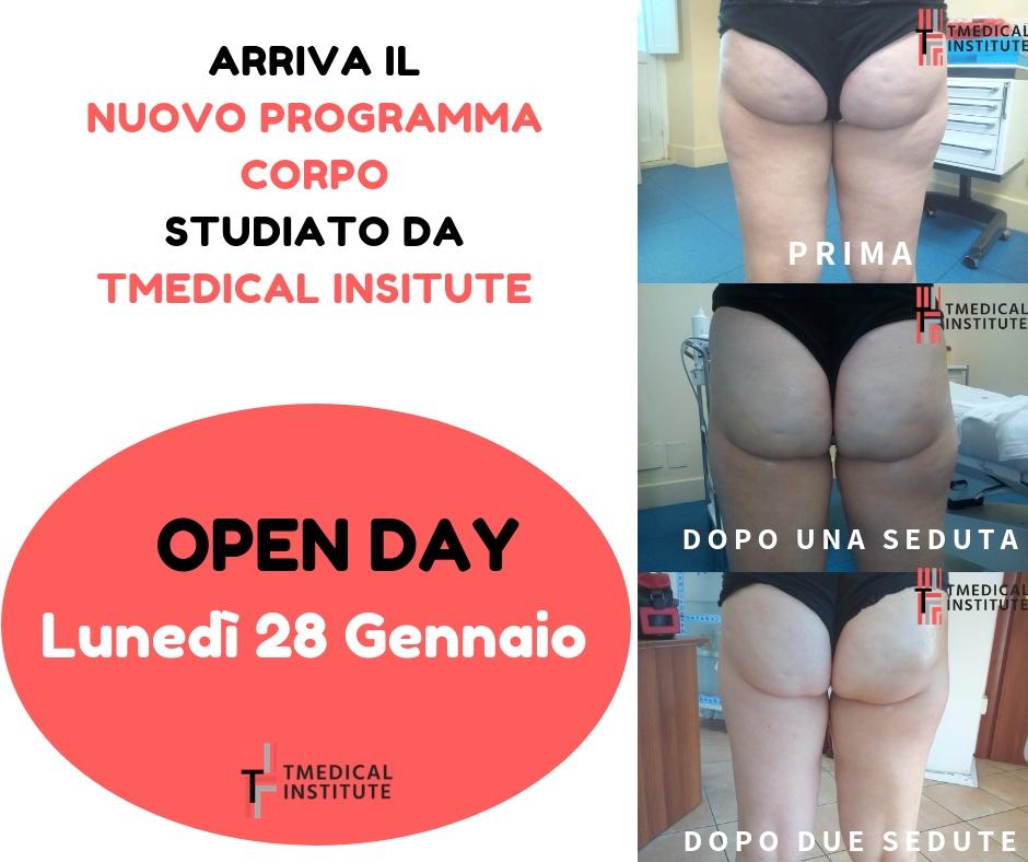 Open day 28 Gennaio